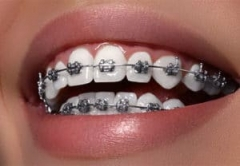 6 Reasons Why You Need Braces